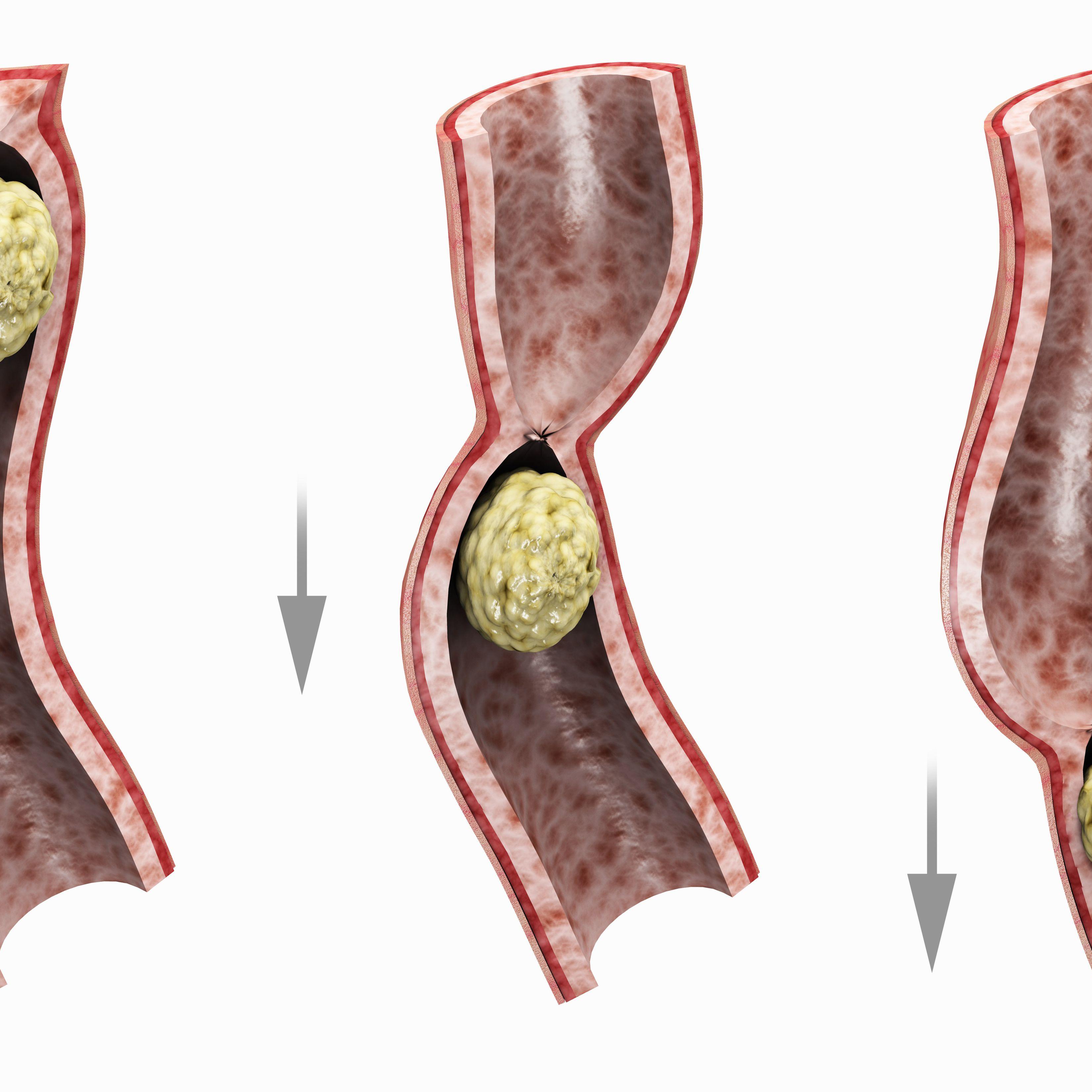 ulcerative inflammatory bowel disease shut bowel