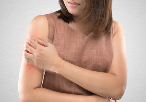 Asian women who are itching from insect bites against gray wall background. / Health care and medicine. / People with skin problem concept.