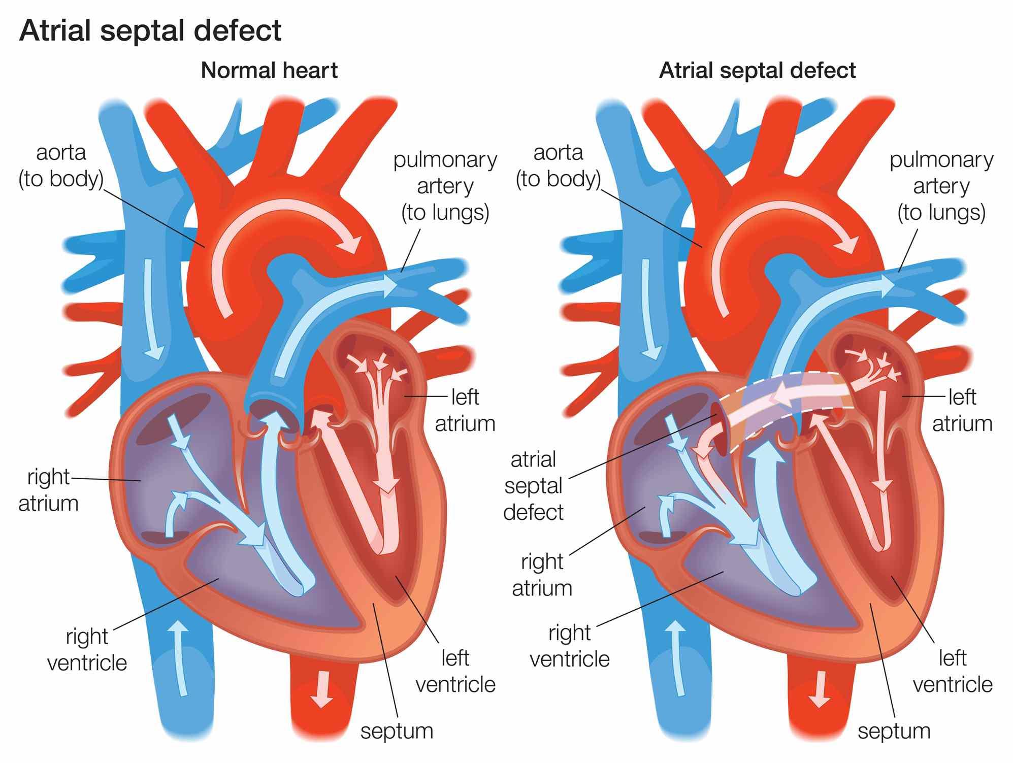 Atrial Septal Defect (ASD) Explained