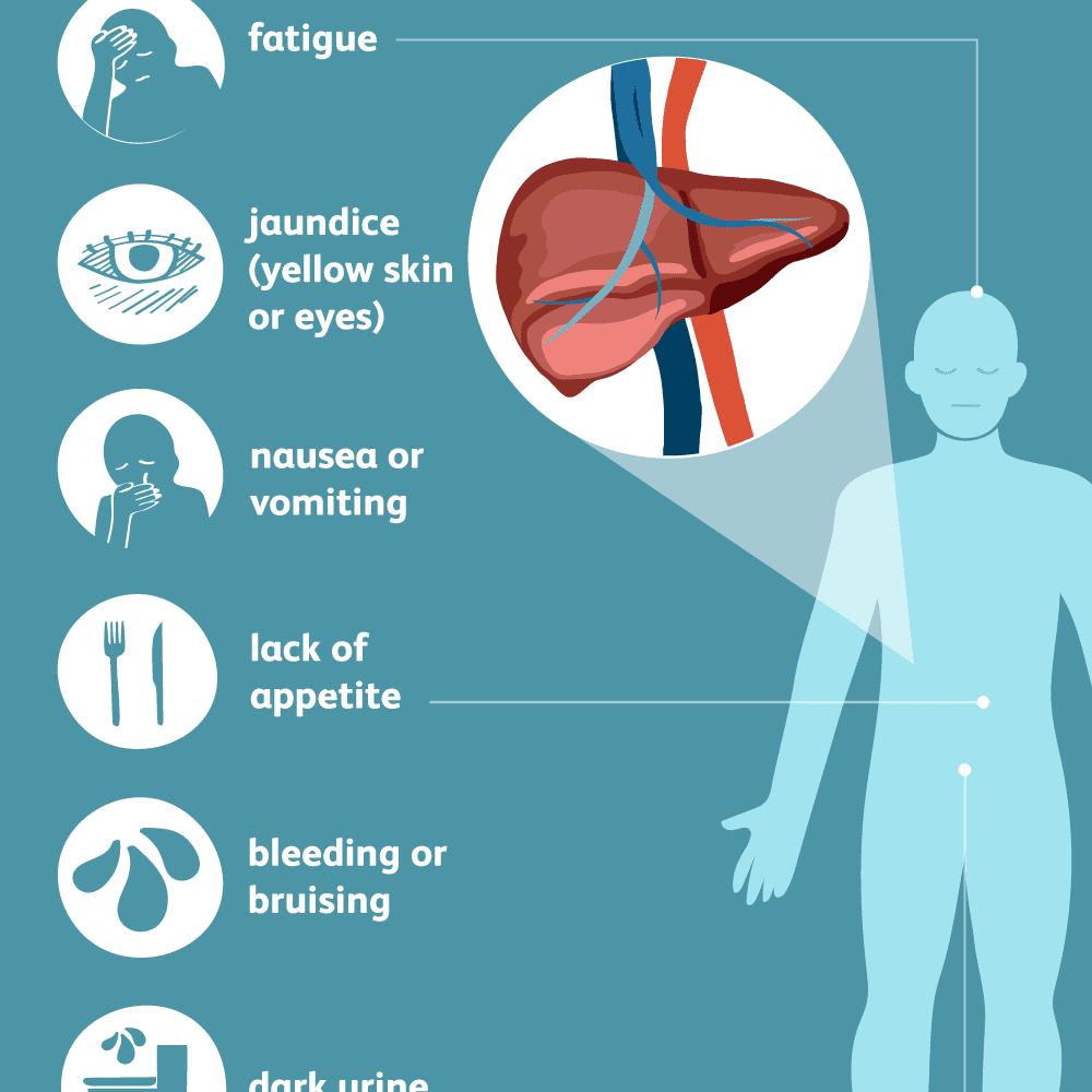 Hepatitis C Virus: Signs, Symptoms, and Complications