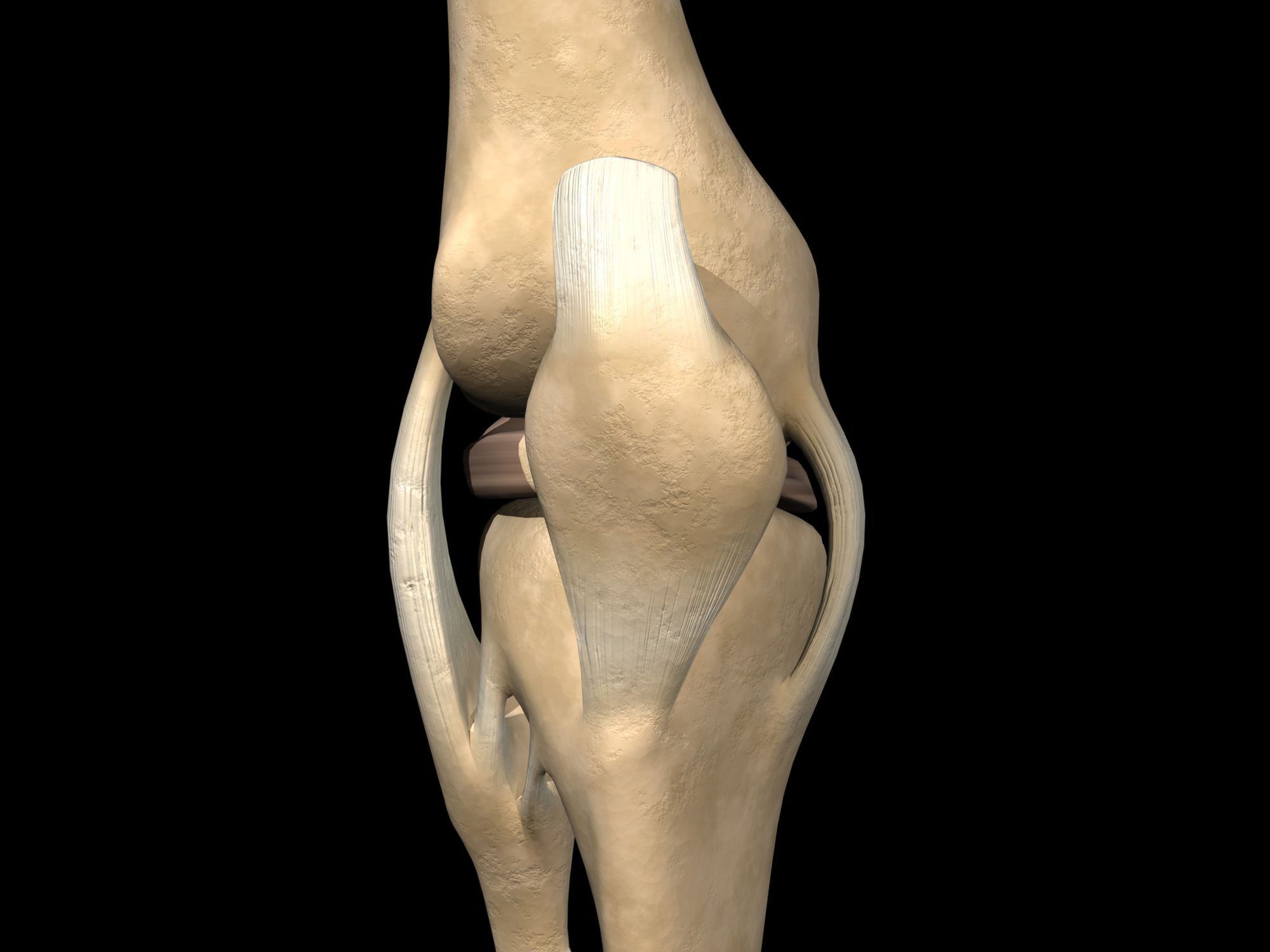 dc6770cddb1 MCL Tear or Medial Collateral Ligament Injuries