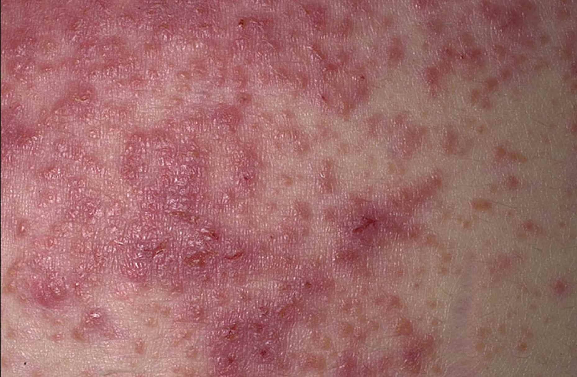 Dermatitis Herpetiformis Celiac Disease Rash Photos