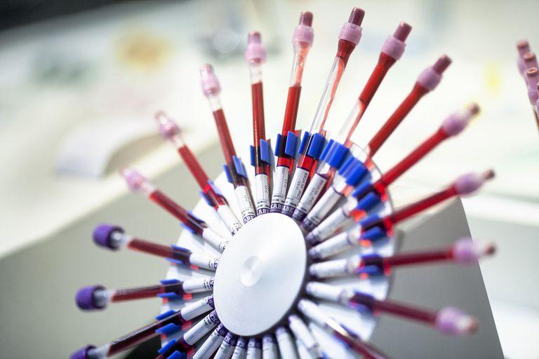 Blood test, test tubes in a centrifuge