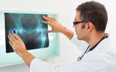 Doctor looking at X-ray of sacral vertebrae