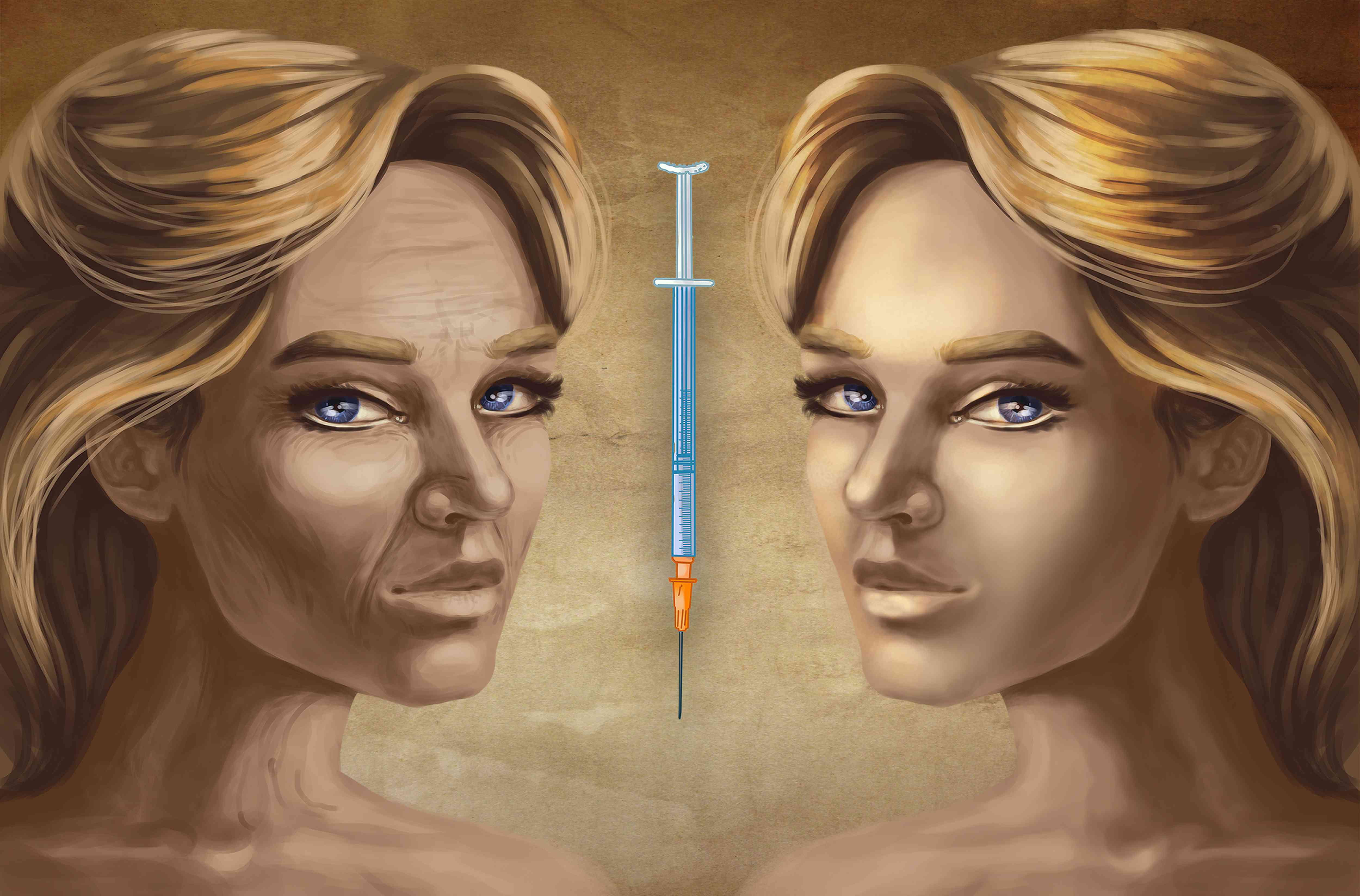 Mirror image illustration of a woman's face with wrinkles and without with syringe of dermal filler in the middle