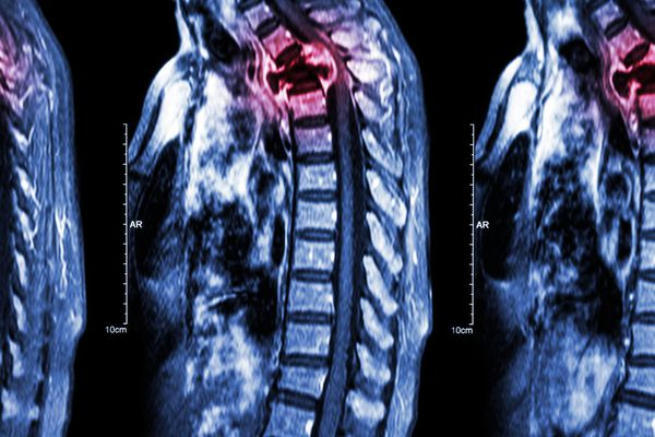 Spine metastasis (cancer spread to thoracic spine)