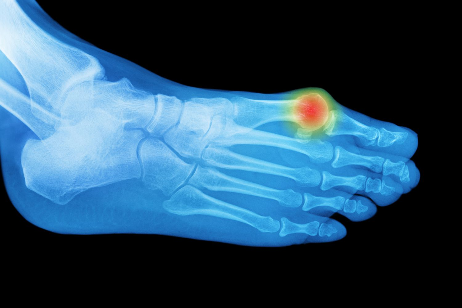 A bunion seen with hallux limitus in X-ray