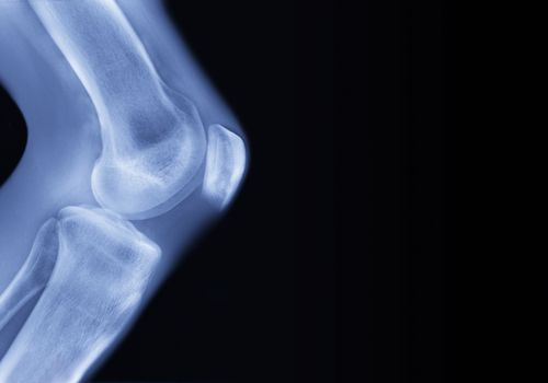 Scan of a knee