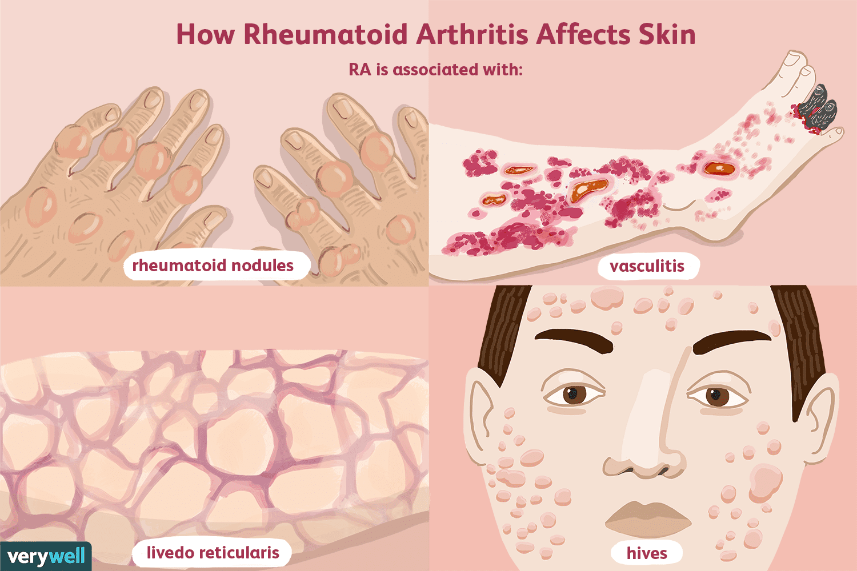 What Skin Problems Does Rheumatoid Arthritis Cause