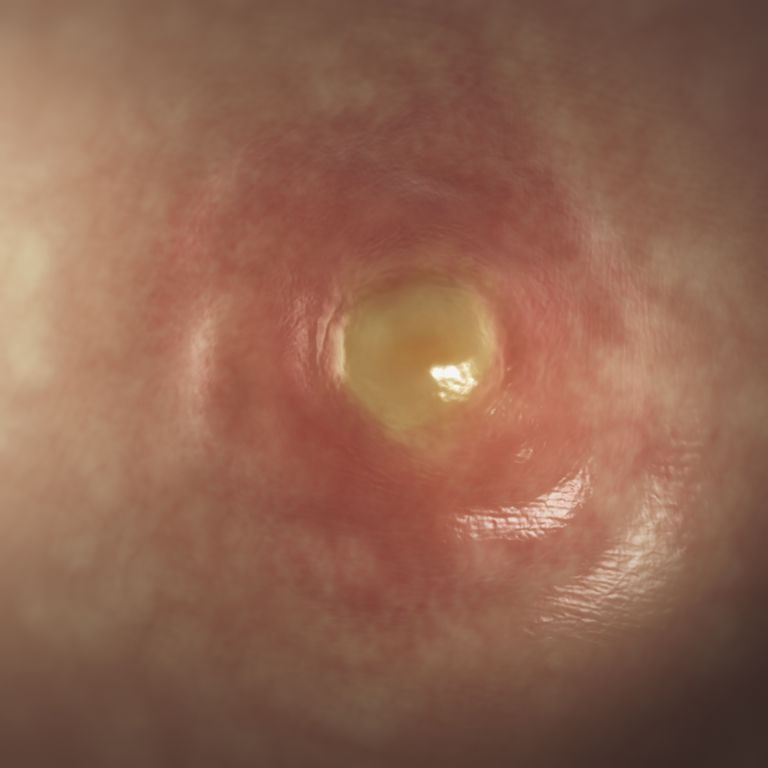 A boil looks like a large pimple.