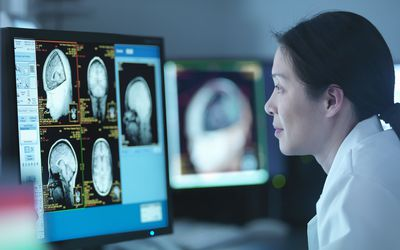 Doctor looking at MRI scans of the brain.