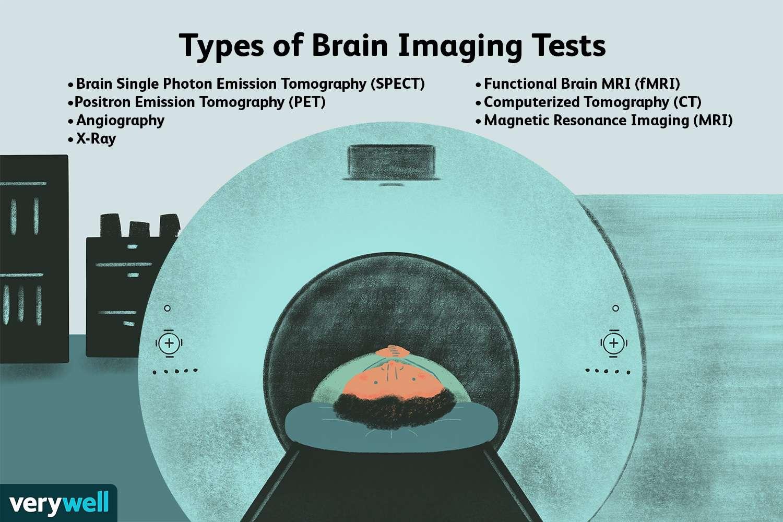 Types of Brain Imaging Tests