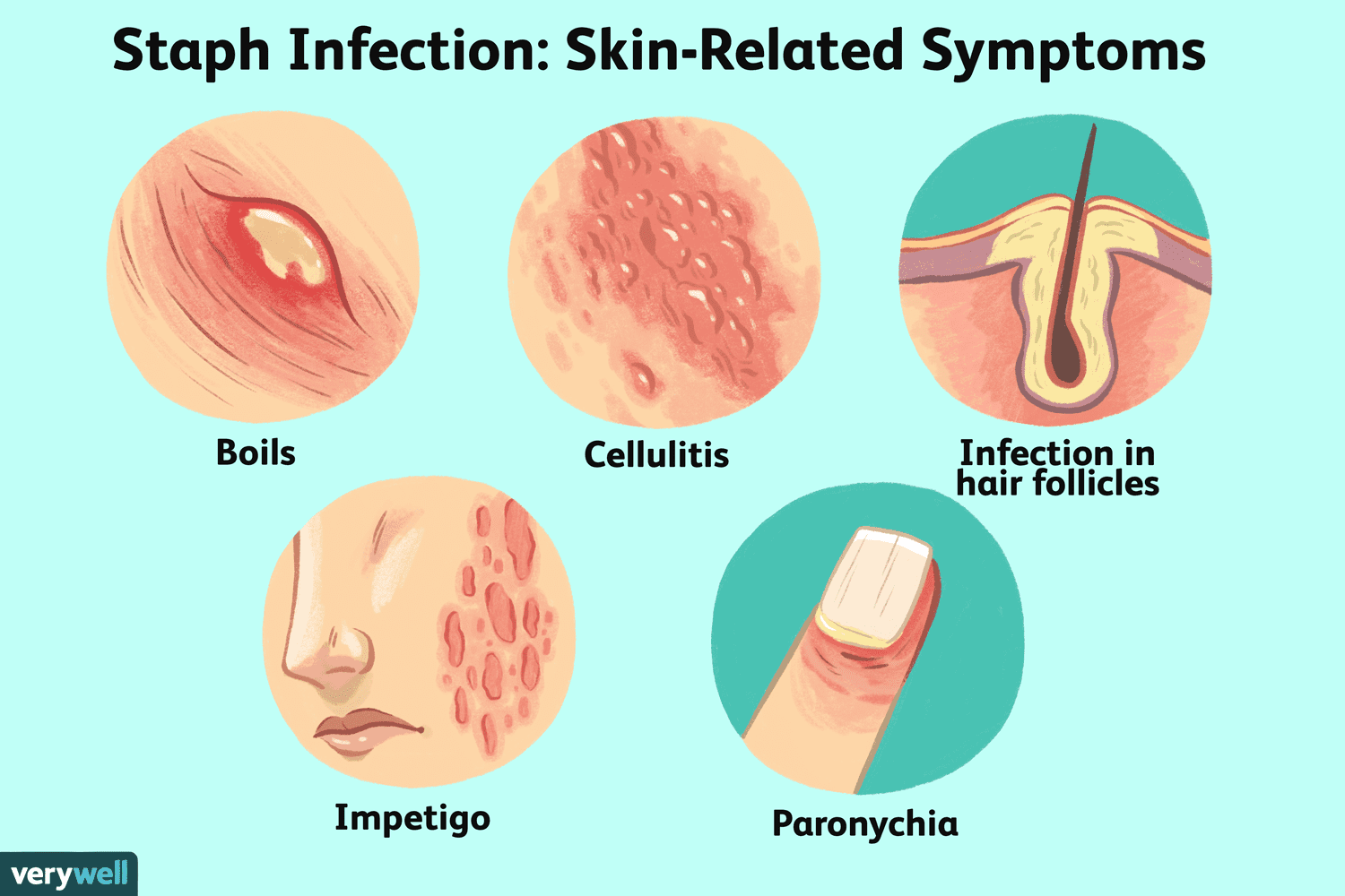 Staph Skin Infections and MRSA Treatments