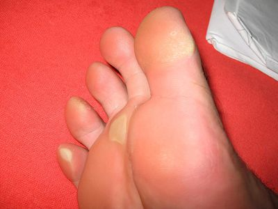 A calloused foot