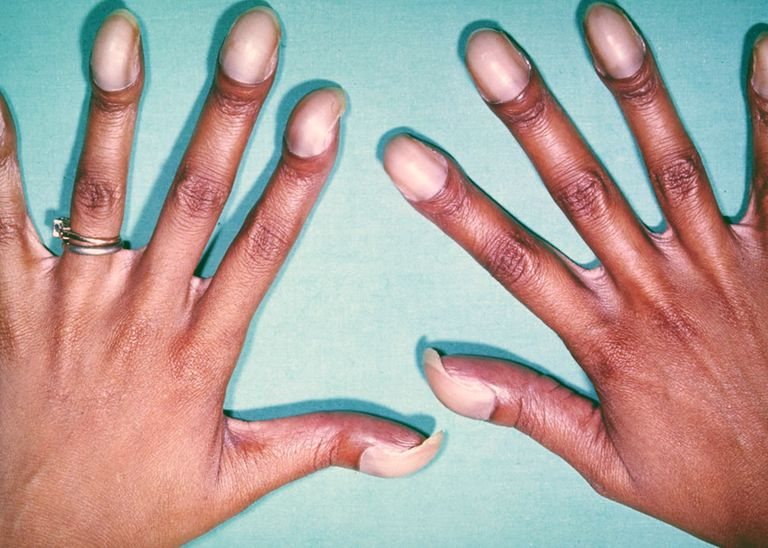 Clubbing of the Fingers Causes