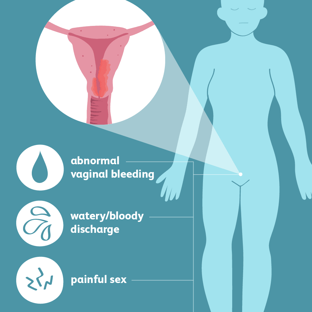 Endometrial Cancer: Signs, Symptoms, and Complications