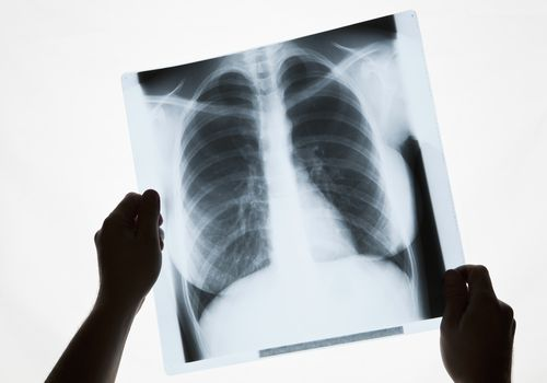 Hands holding a chest x-ray, close-up