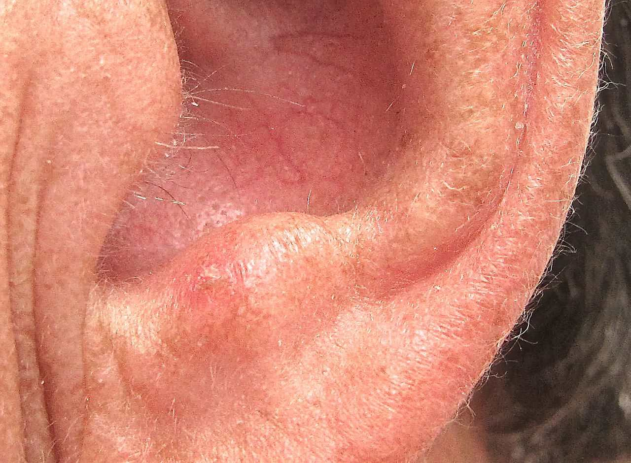 Pictures of Moles, Nevus, Actinic Keratosis, Psoriasis