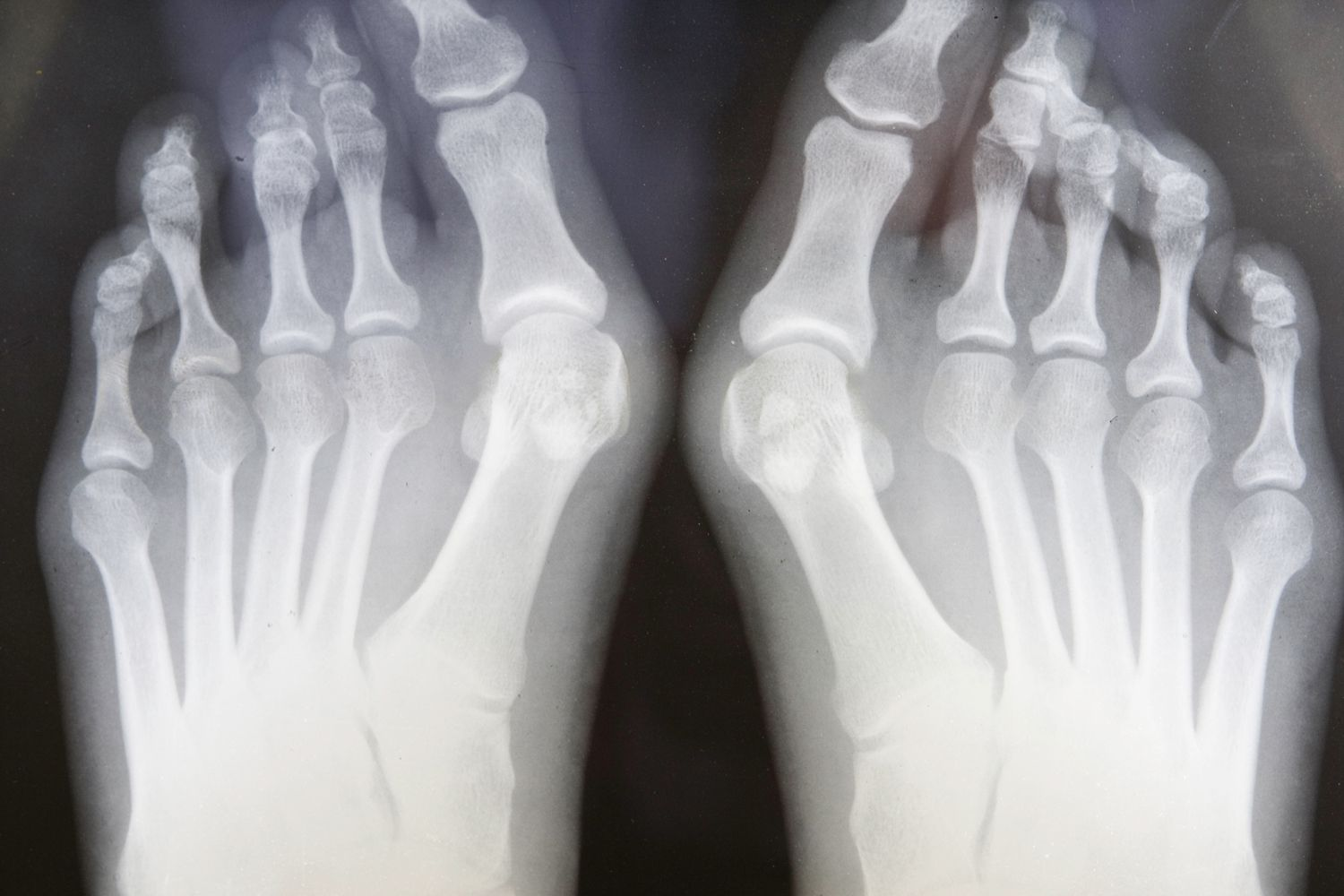 A tailor's bunion in X-ray