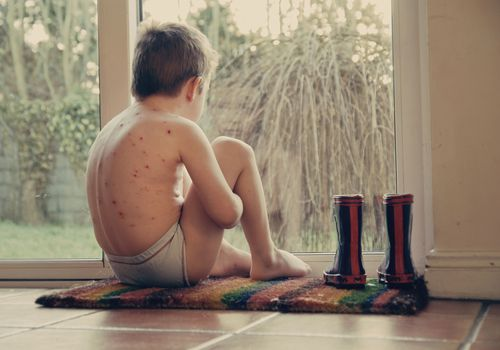Boy with chicken pox