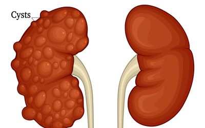 Illustration of Polycystic Kidney compared to Health Kidney