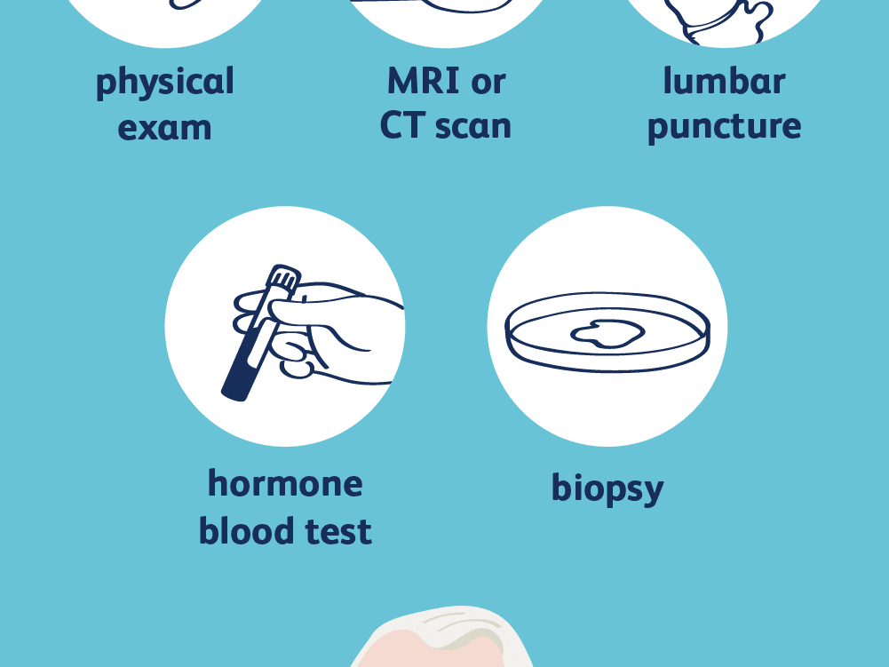 How A Brain Tumor Is Diagnosed