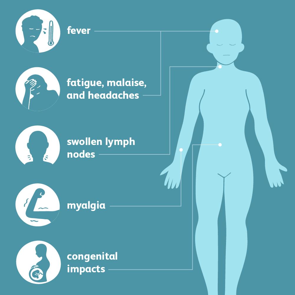 Totul despre toxoplasmoza - cauze, simptome, tratament