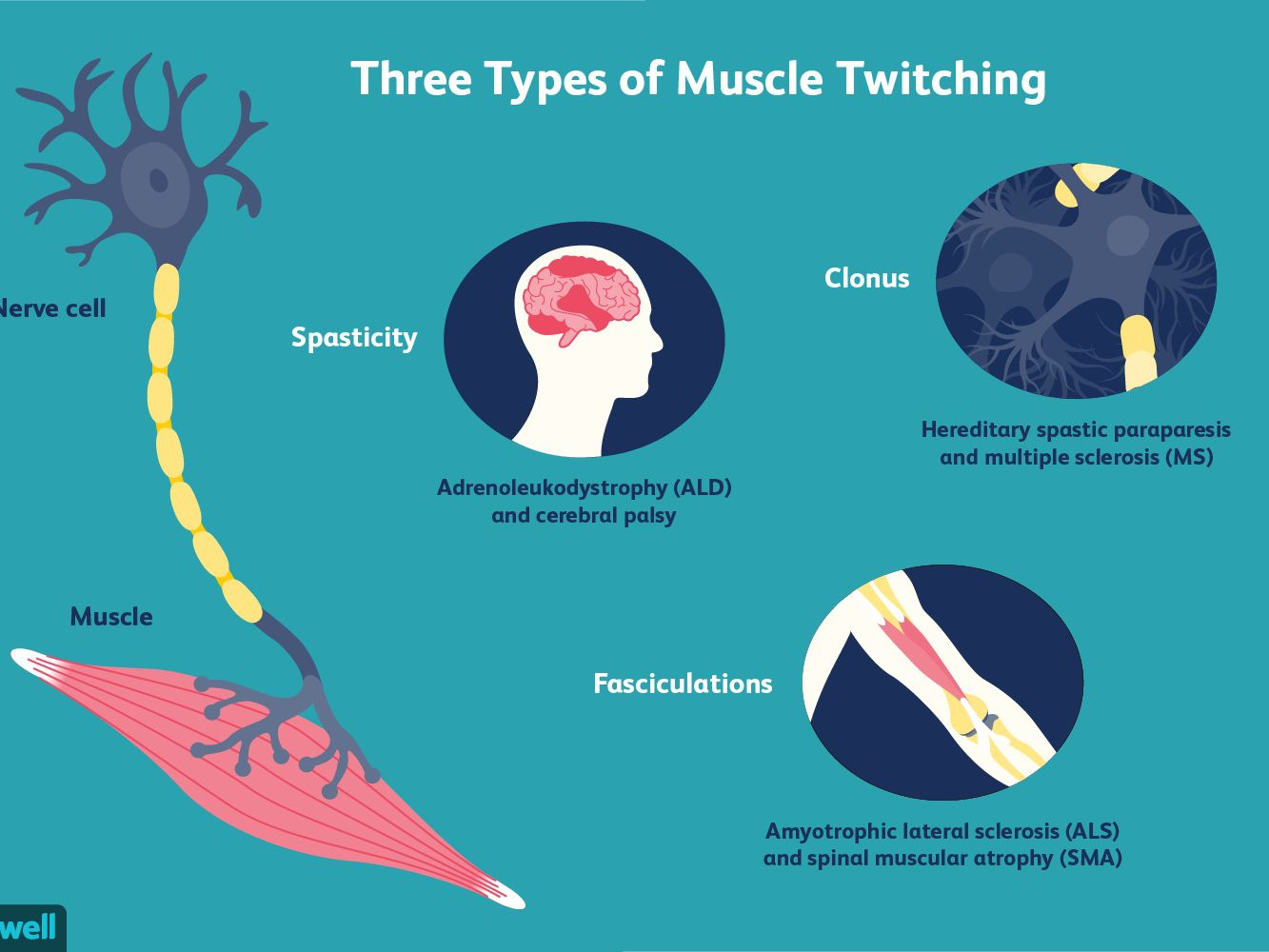 Muscle Twitches Ms And Other Possible Causes