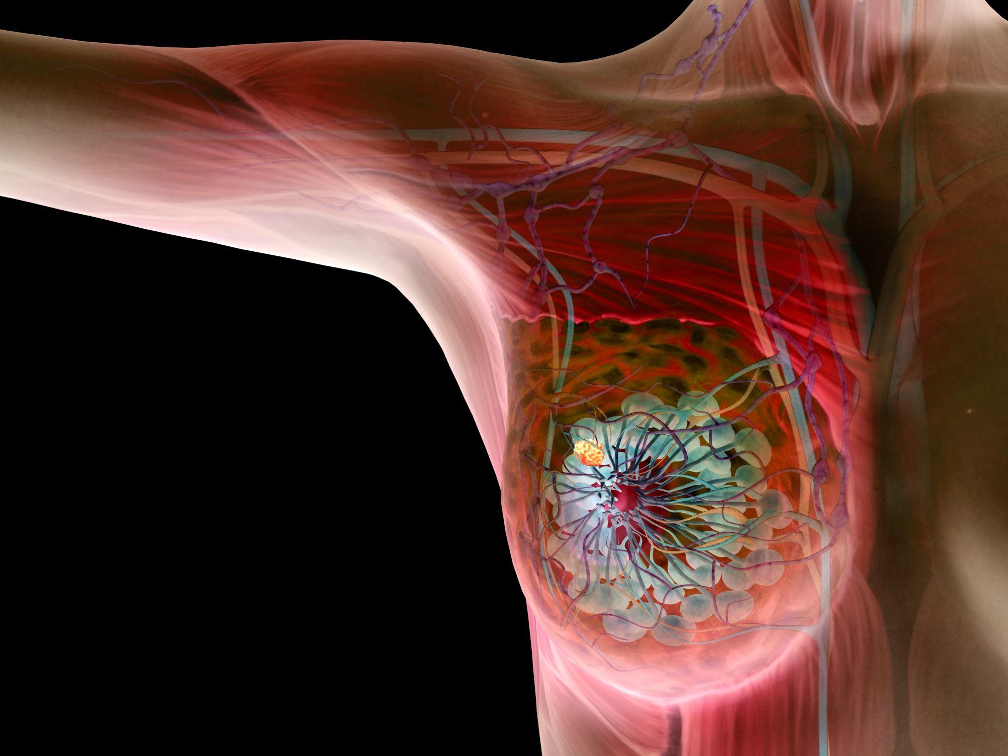 Breast Lumps: Cancerous vs  Non-Cancerous