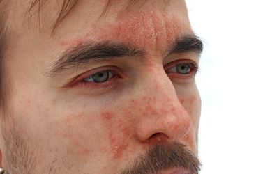 head of sick man with red allergic reaction on facial skin, redness and peeling psoriasis on nose, forehead and cheeks, seasonal skin problem