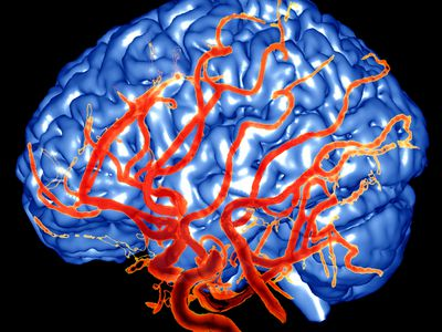 Propranolol for Preventing Migraines