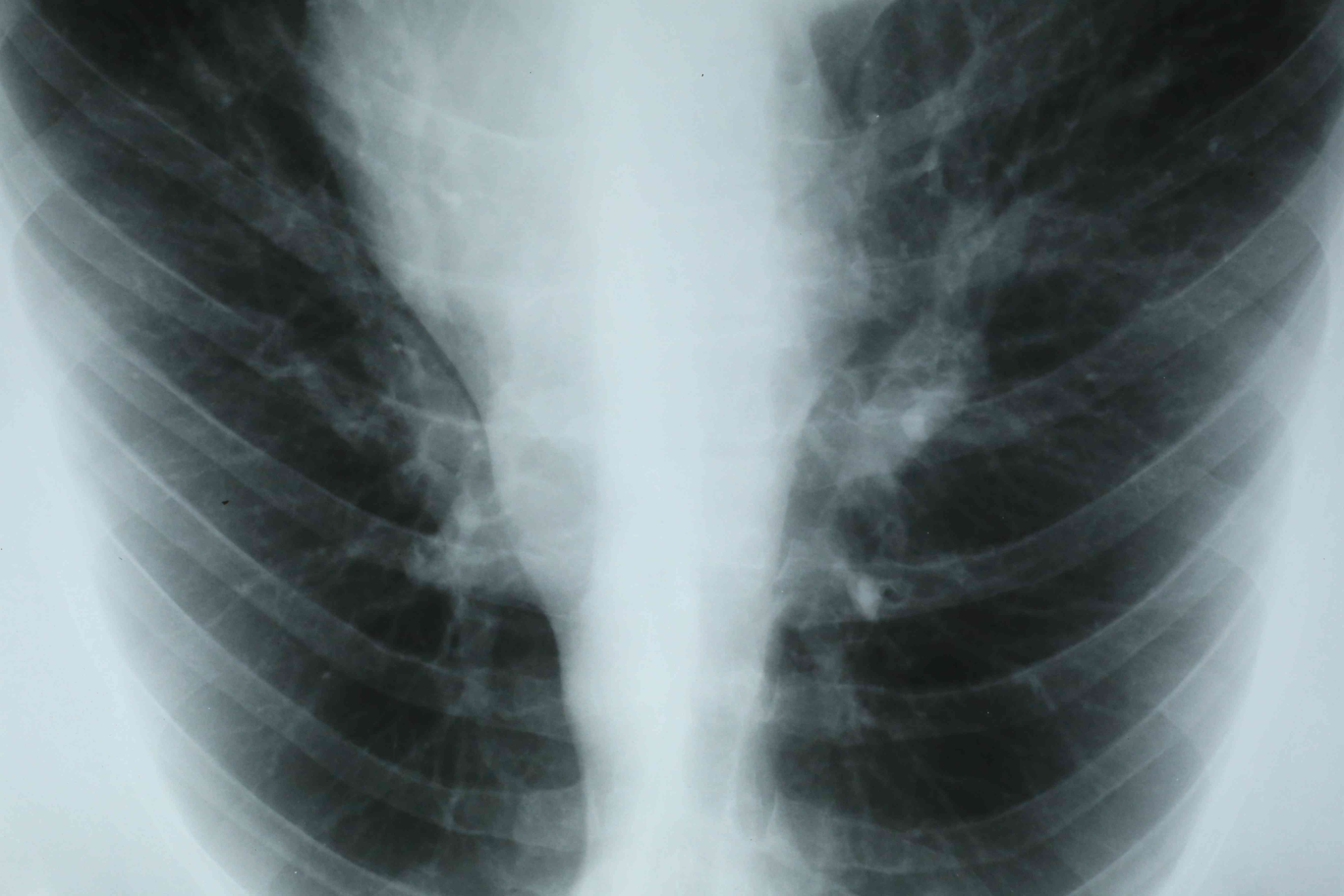 Chest x-ray image on light table showing of a patient's lungs and respiratory tract