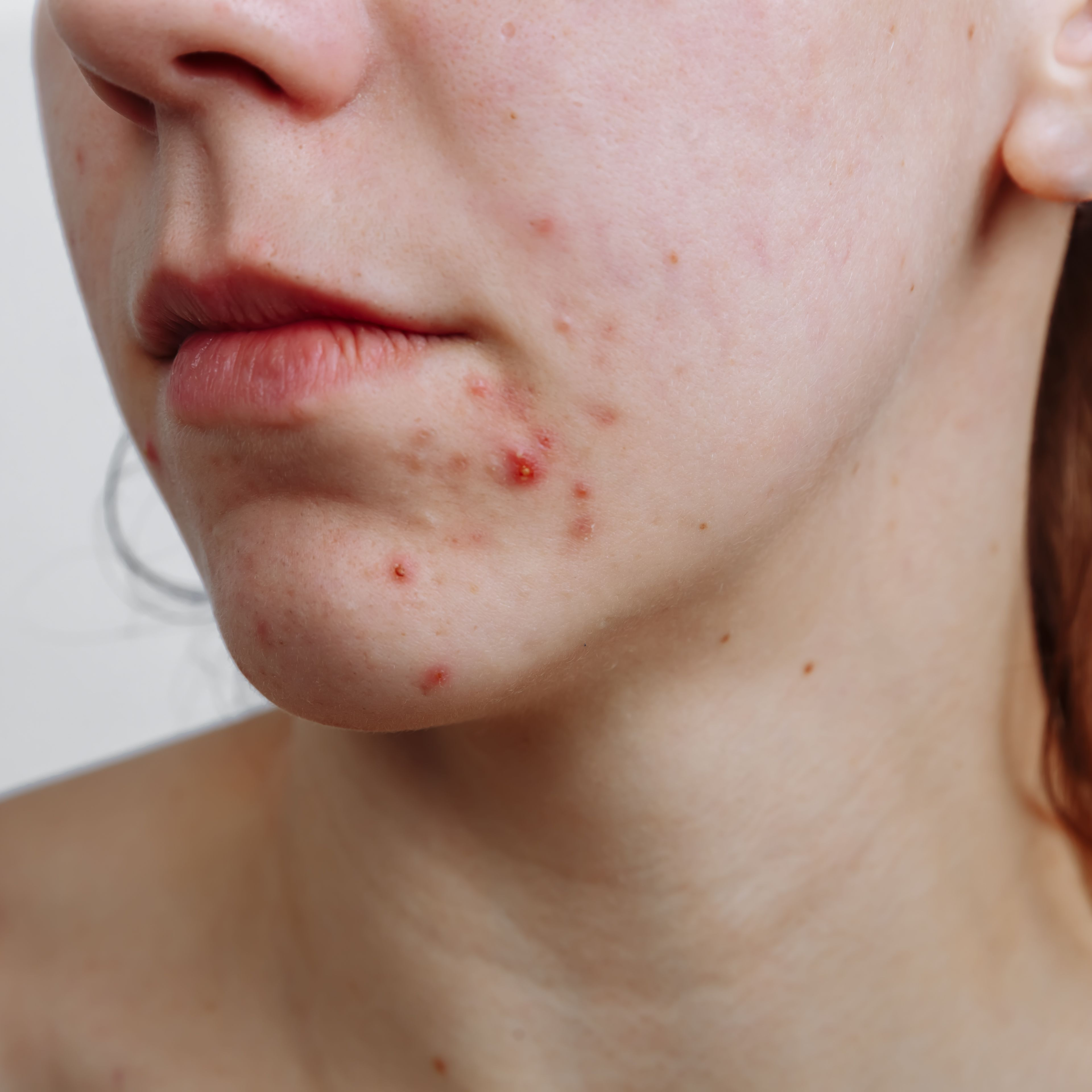 Can You Catch Acne From Someone Else?
