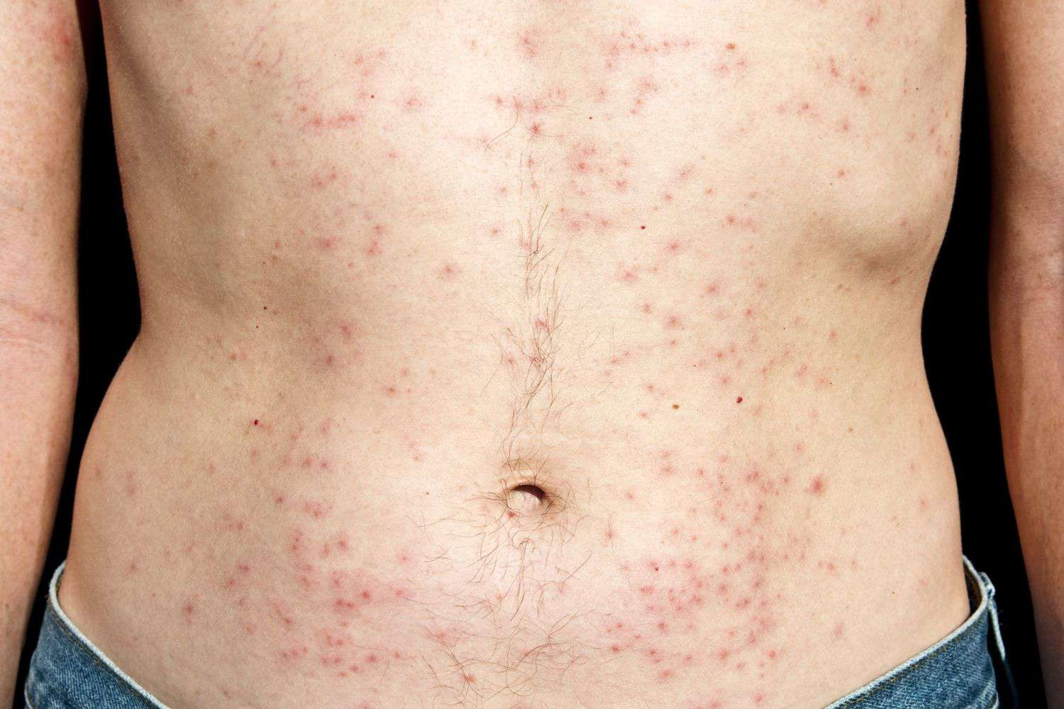 9 Common Bacterial Skin Infections