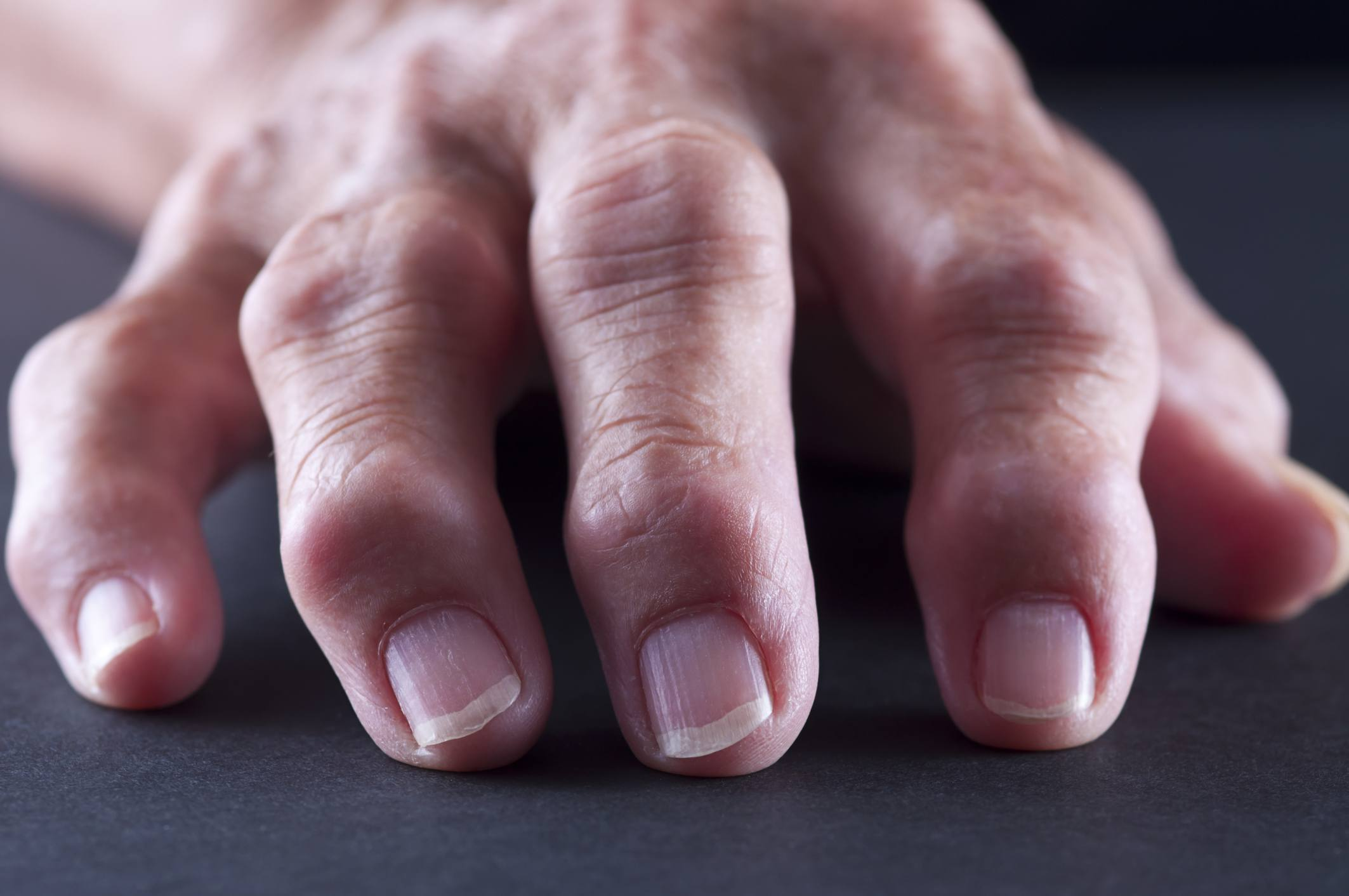 signs and symptoms of arthritis