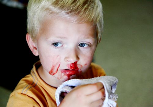 A young boy with a bleeding nose