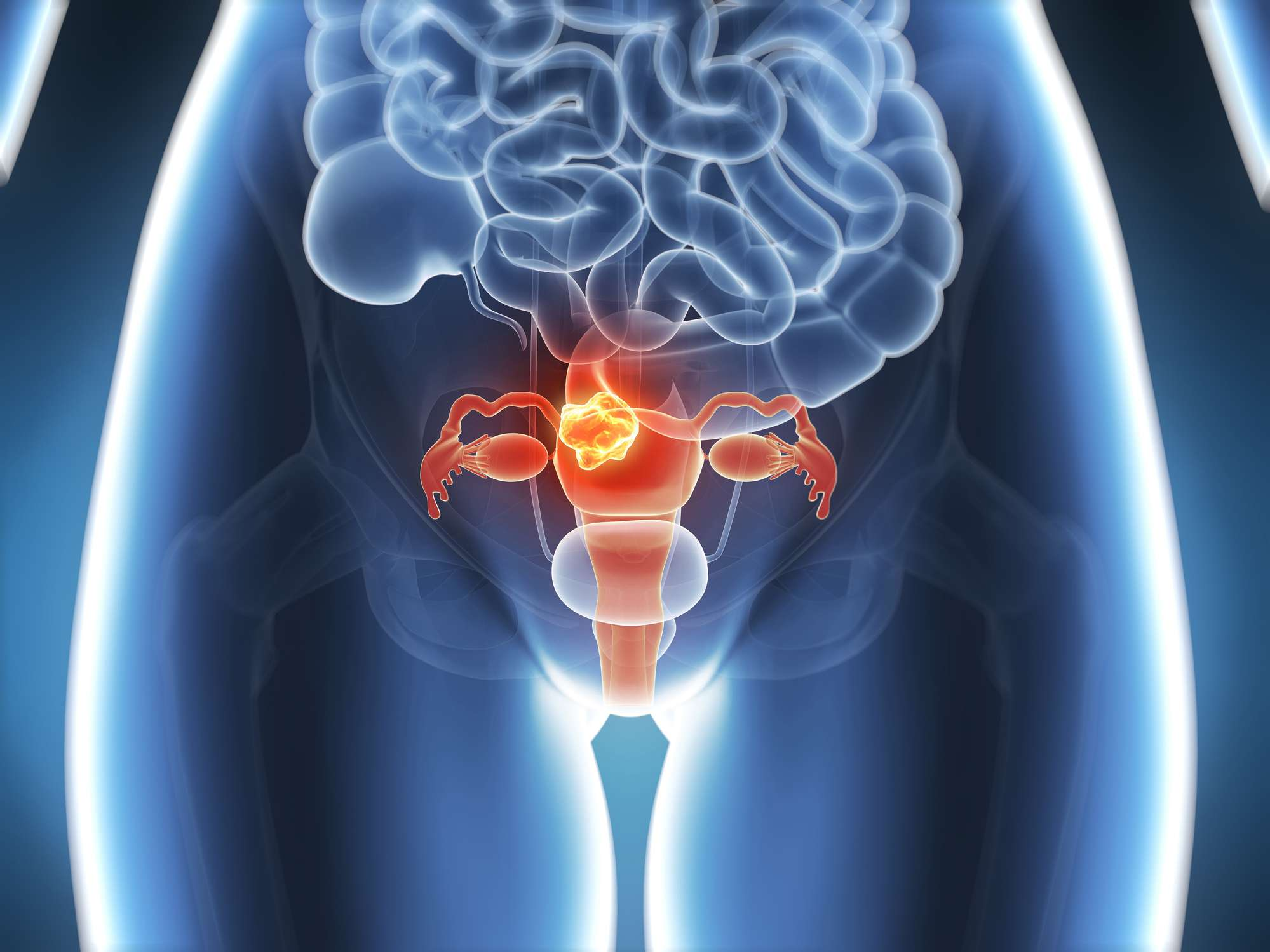 Graphical representation of X-ray vision of the female reproductive system.