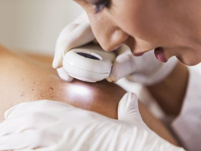 Female dermatologist (30s) examining male patient's skin with dermascope, carefully looking at a mole for signs of skin cancer.