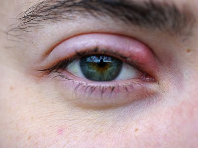 Eye with a red bump (stye) on the inner corner of the upper lid.
