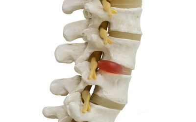 Close-up view of herniated lumbar vertebral disc model