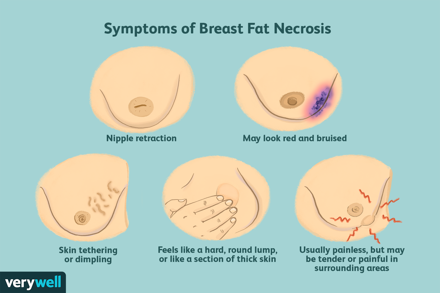 Breast Fat Necrosis Symptoms Causes Diagnosis And Treatment