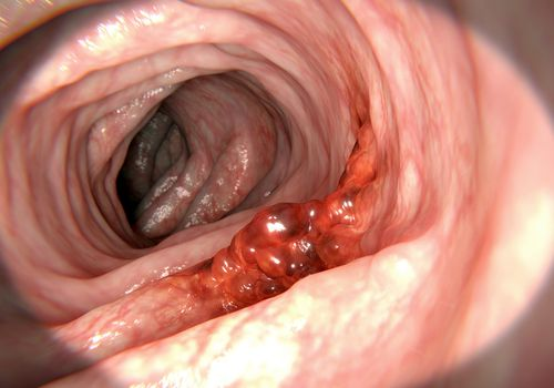 Cancerous tumor (mass) in the colon