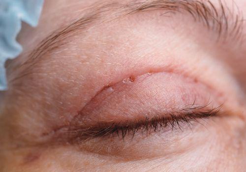 Upper eyelid after blepharoplasty