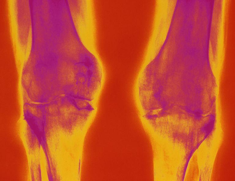 Arthritic knees