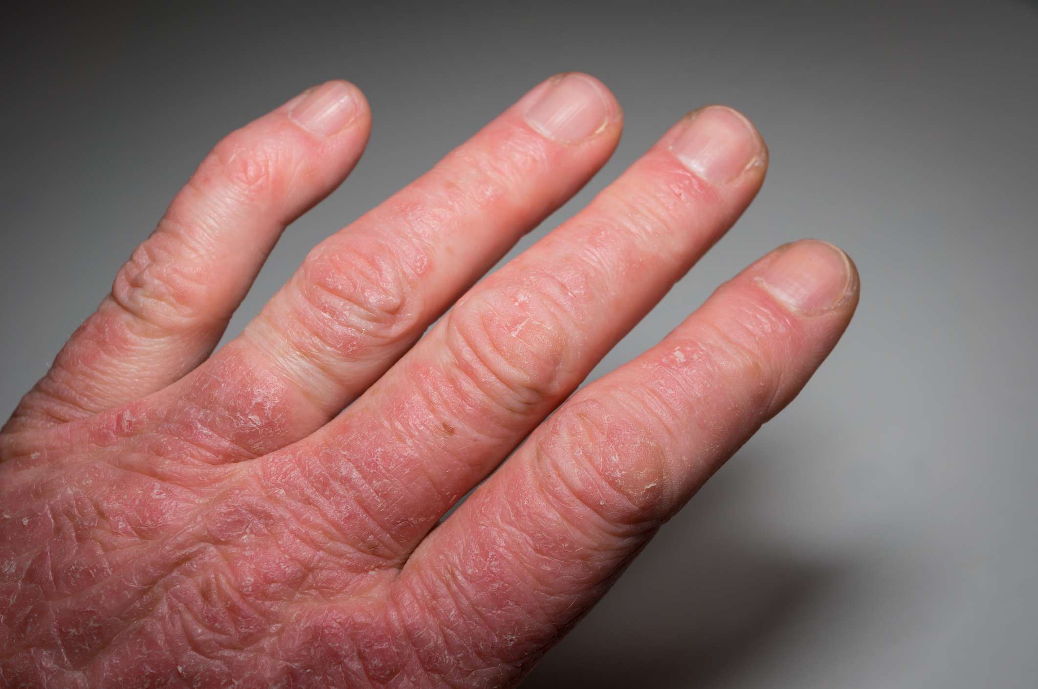 Hand of a psoriasis patient close-up. Psoriatic arthritis. Joint deformation and inflammation on the skin