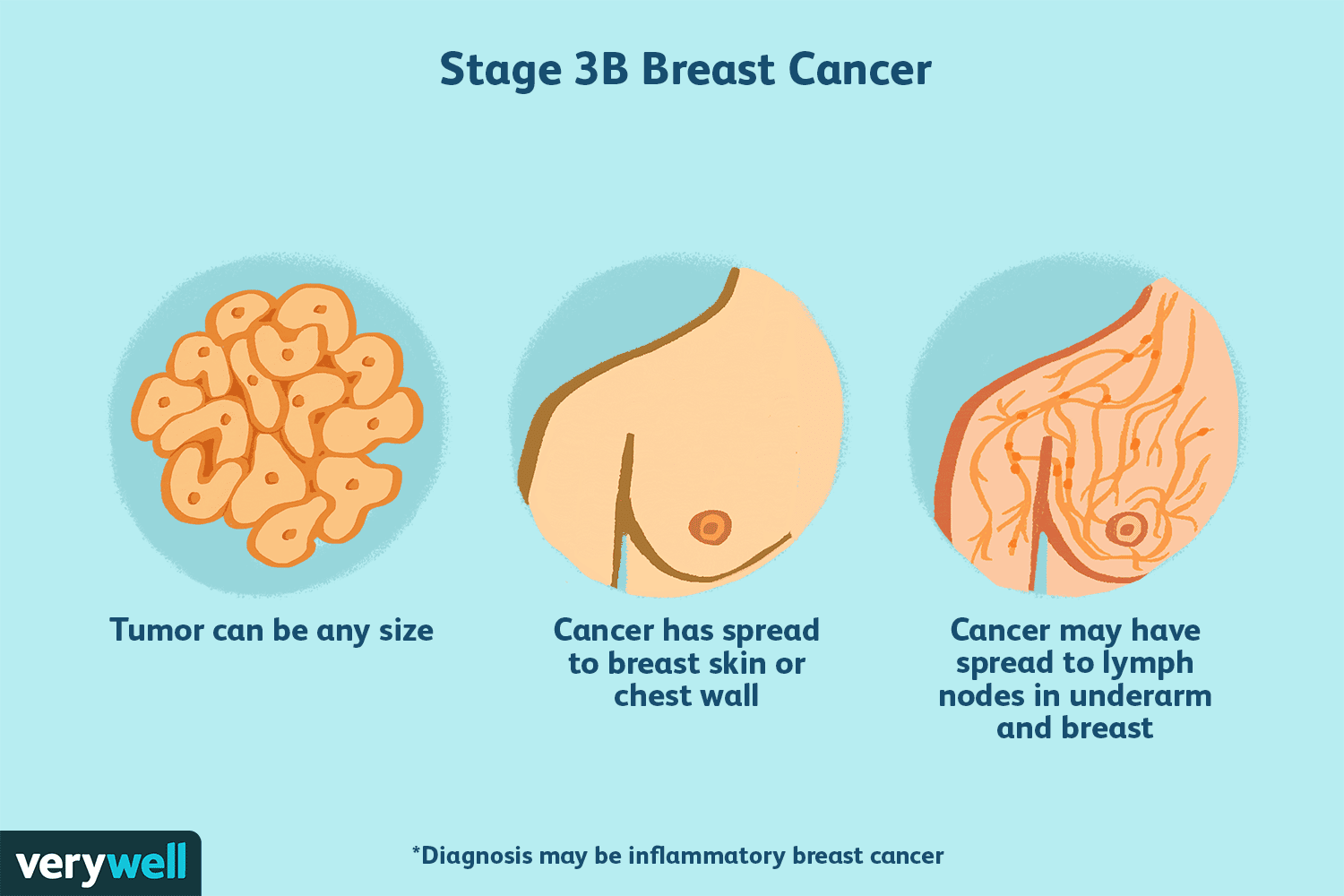 Stage 3 Breast Cancer Types Treatment Survival
