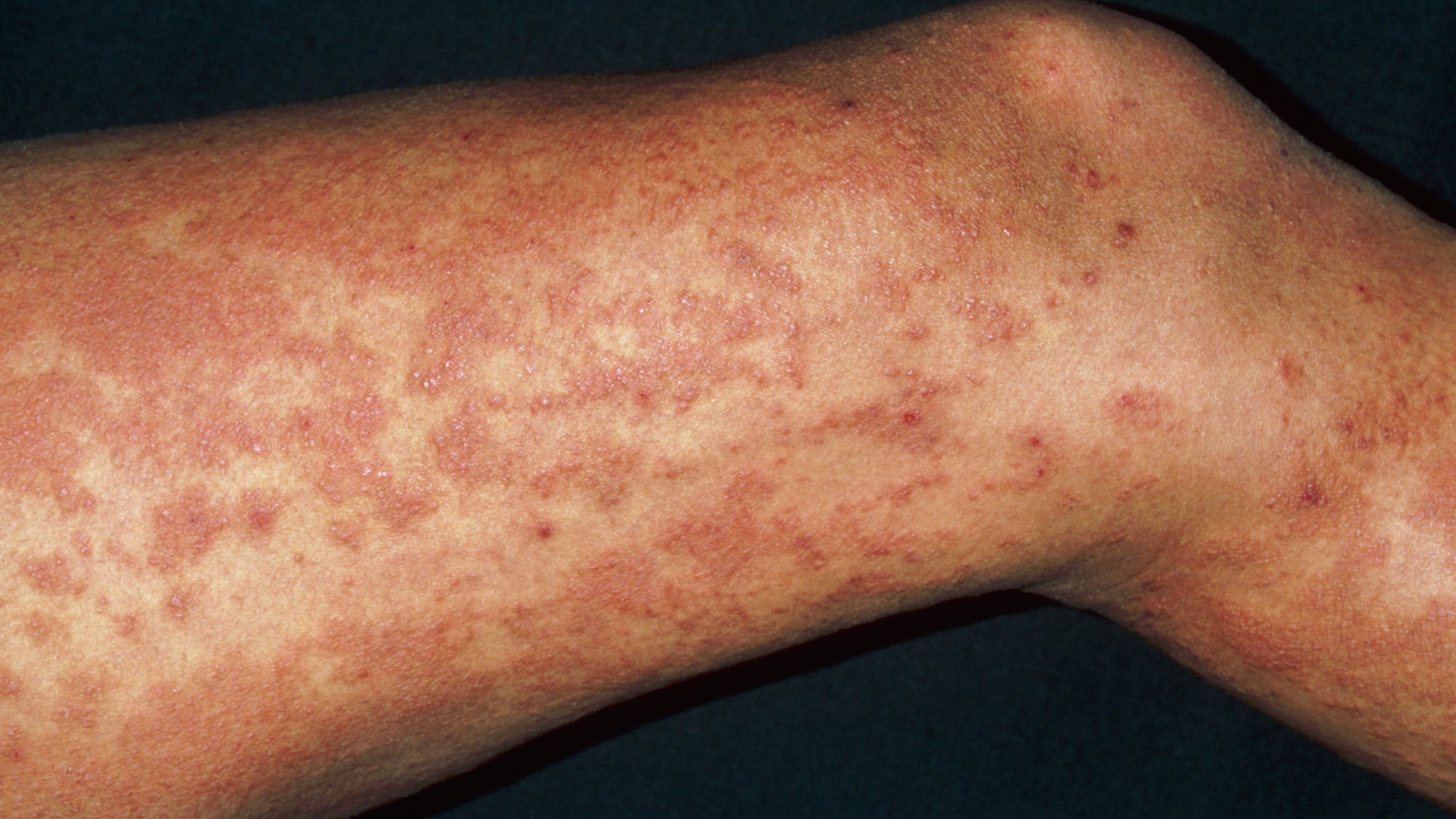 Overview of Hives or Urticaria