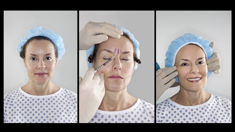 What Botox Can And Cannot Do