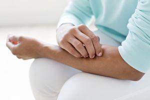 Woman scratching rash