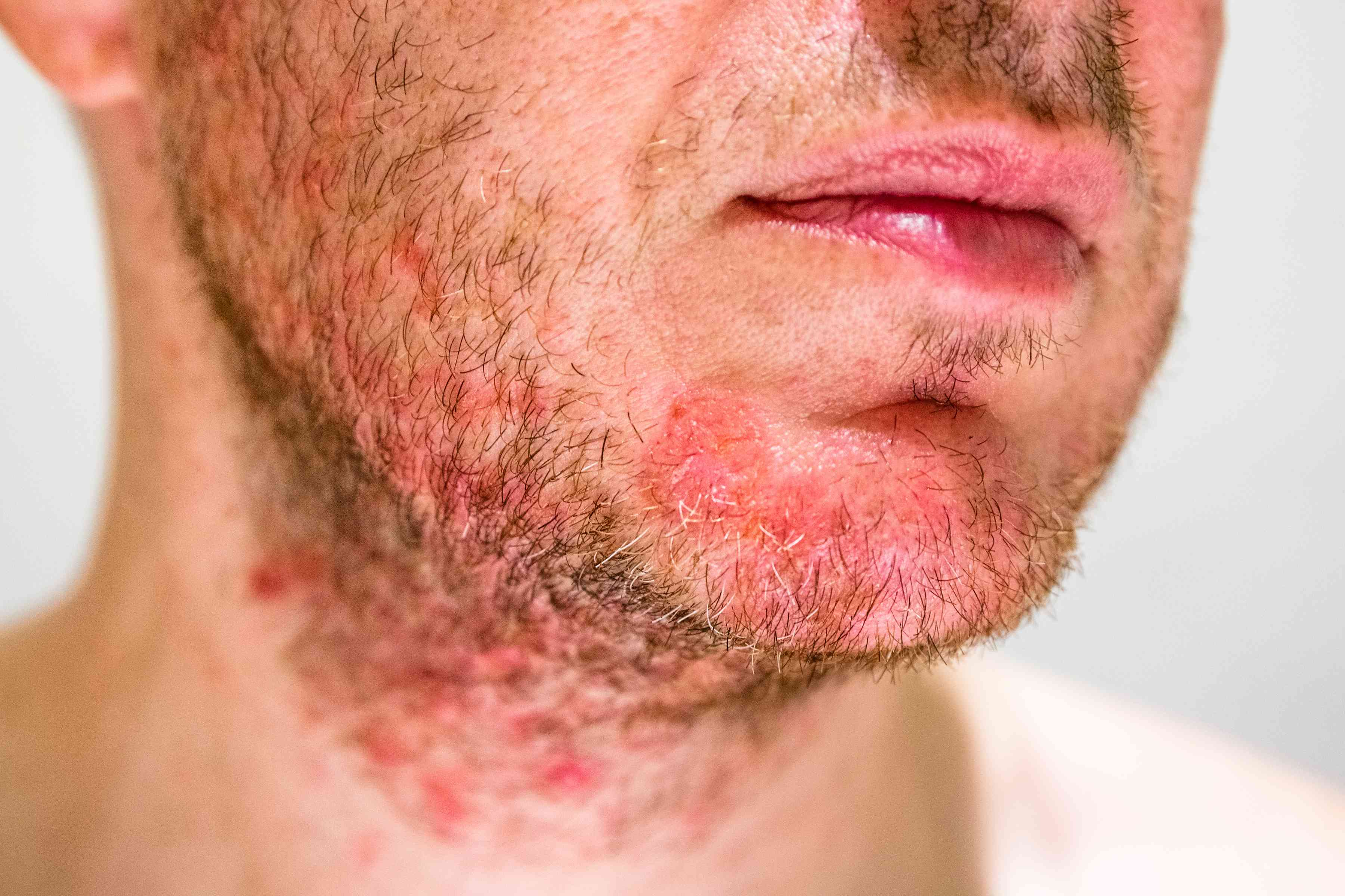 Seborrheic Dermatitis on man's beard